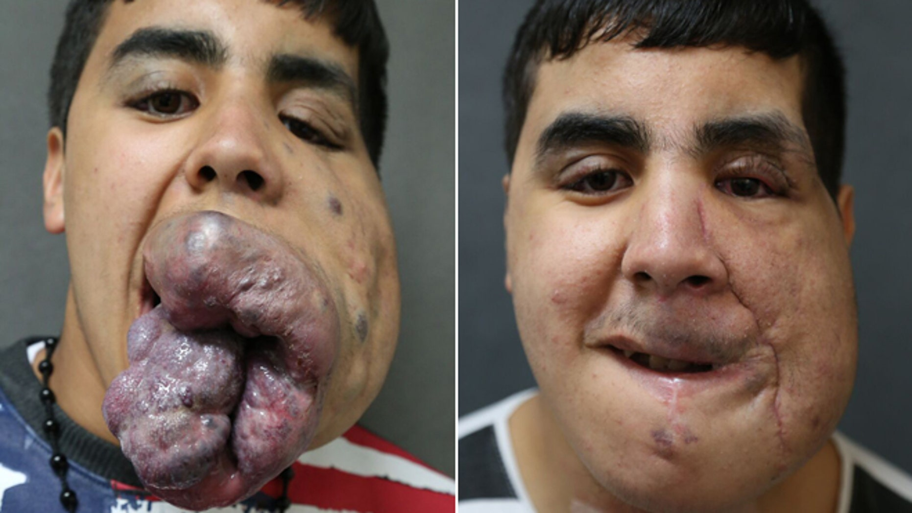 Zoubir Lahdodi, 18, was born with venus malformation, which threatened his ability to eat, breathe, speak and sleep. Lenox Hill Hospital surgeons performed seven surgeries to help correct the potentially fatal disorder.