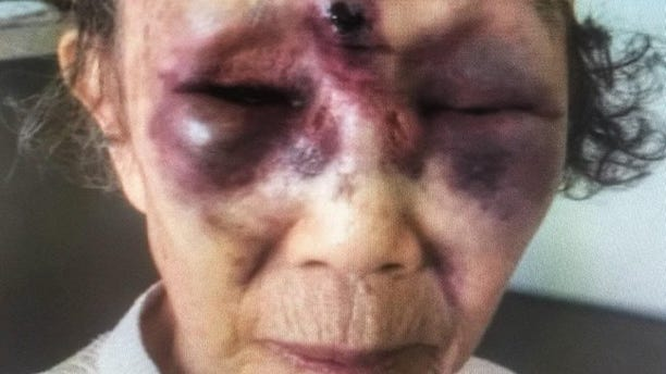 Mi Reum Song, 86, was attacked Saturday afternoon and suffered head injuries.