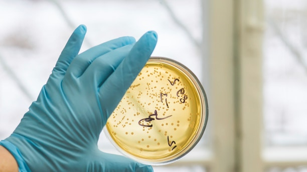 Hand in glove holding Petri dish with bacteria growing in it