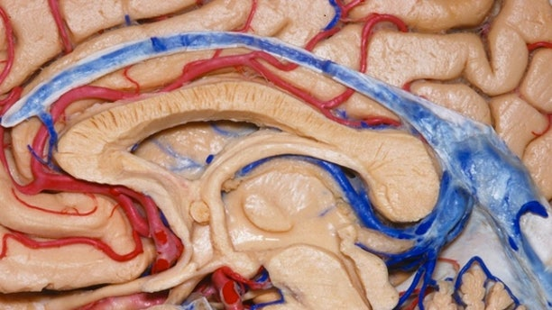 Here, the brain has been neatly sliced in half.
