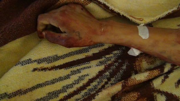 A Kurdish victim of a reported ISIS attack in Syria, in 2014.