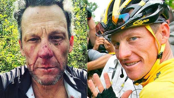 Lance Armstrong was injured after falling from his bicycle in Colorado.
