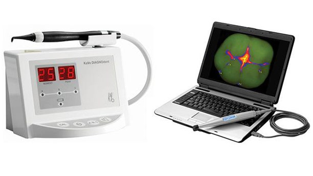 Emerging devices like Kavos popular Diagnodent (left) and Air Techniques Spectra (right) have been accused of helping dentists drum up business with unnecessary drillings.
