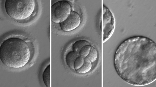 This sequence of images shows the development of embryos after co-injection of a gene-correcting enzyme and sperm from a donor with a genetic mutation known to cause hypertrophic cardiomyopathy. (OHSU)