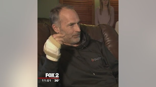 Oakland County Sheriff Deputy Tom Kangas is seen here after a freak accident chopped off his finger.