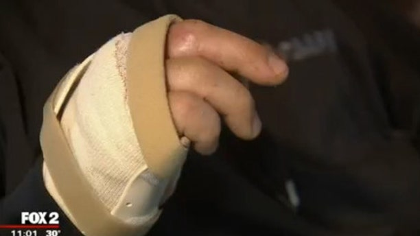 The bandaged right hand of a Michigan police officer after a freak accident.