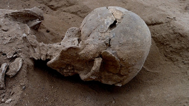 This undated photo shows a male skeleton with skull wounds consistent with those from a blunt object, found near Lake Turkana in Kenya. (Marta Mirazon Lahr)