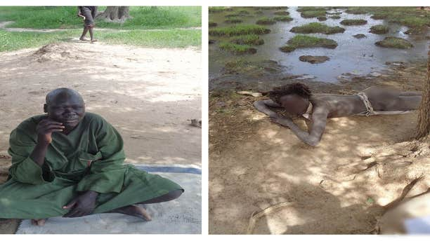 Dr. Atong Ayuel Longar treated this unidentified man, who was found chained to a tree, right, and is now enjoying a healthier life, seen left.