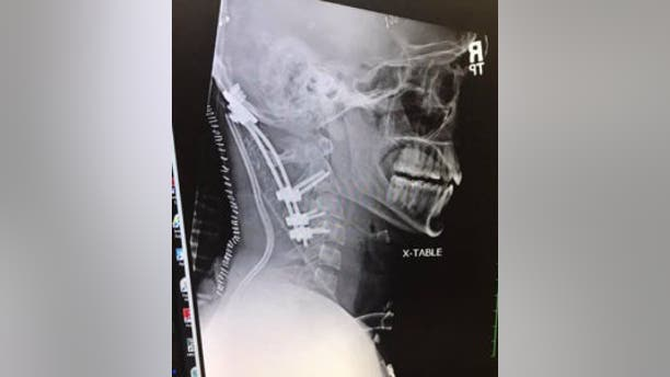The X-ray of Meister's neck.