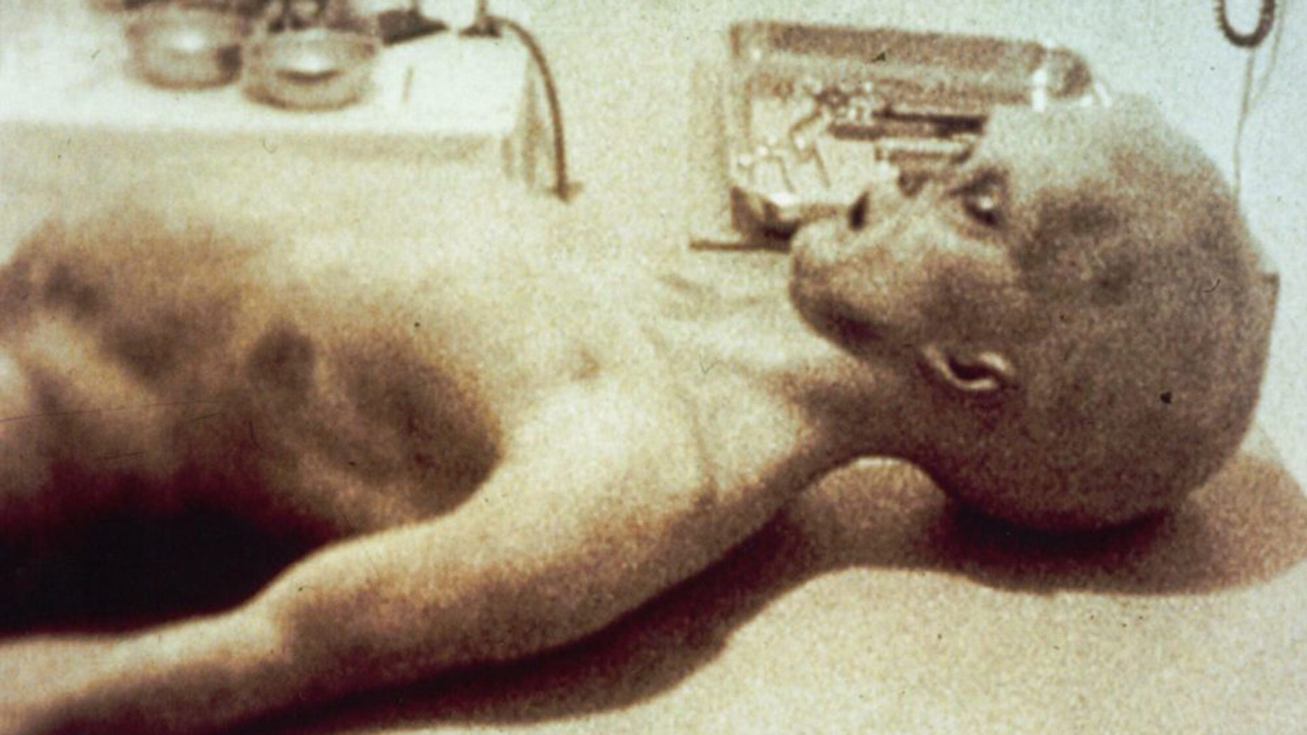 Filmmaker Spyros Melaris led the team behind the now infamous footage claiming to show an alien from the1947 Roswell UFO crashbeing dissected by medics.