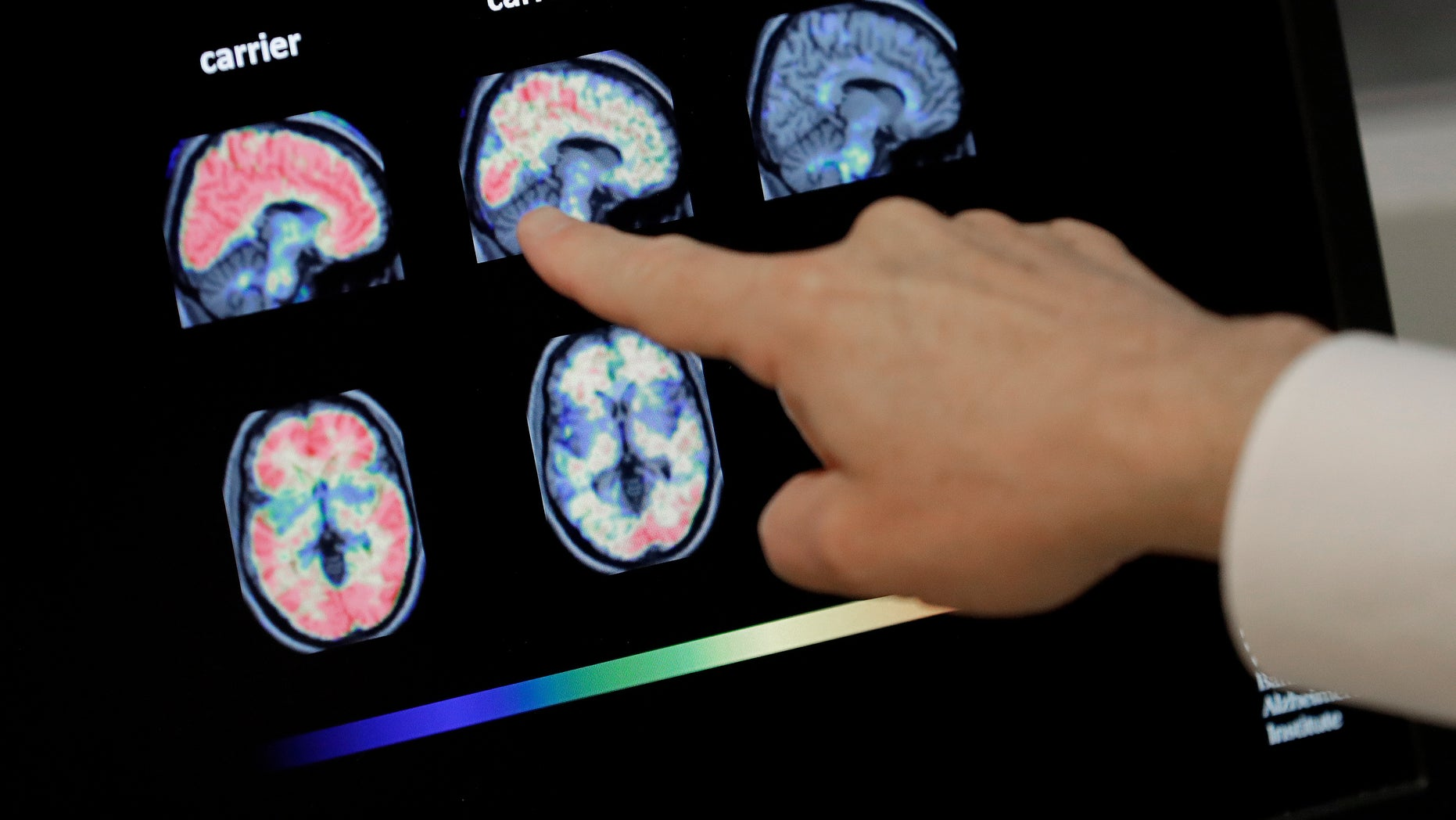 Banner Alzheimers Institute in Phoenix is conducting two studies that target the very earliest brain changes while memory and thinking skills are still intact in hope of preventing the disease.