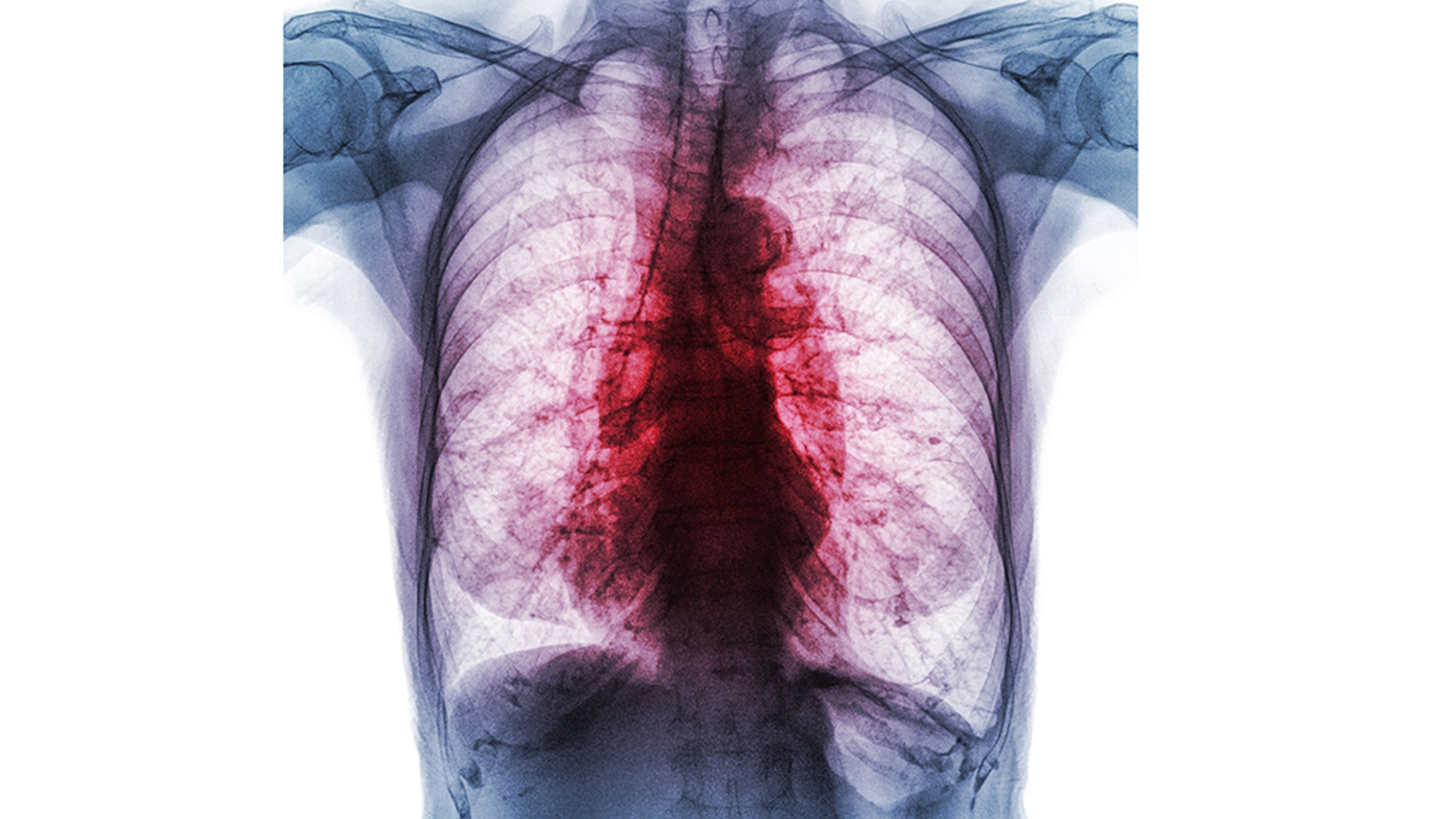An x-ray showing the lungs of a person infected with pulmonary tuberculosis.