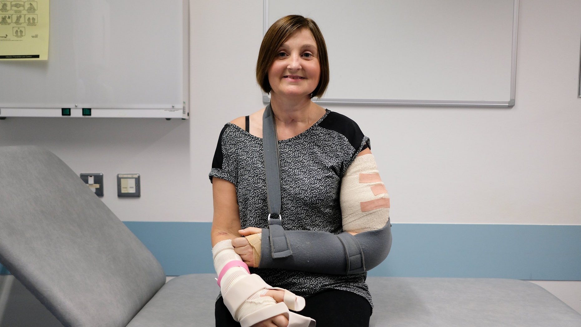 Tania Jackson of Hull after her double hand transplant pictured at Leeds General Hospital.