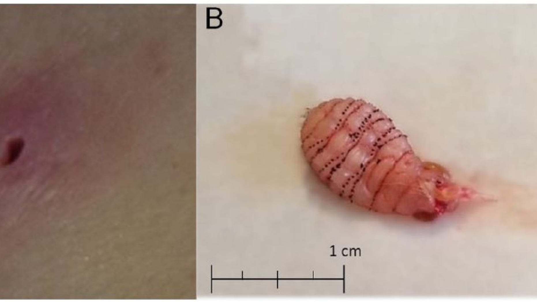 The image on the left shows the lesion on the woman's skin. The image on the right shows the larva after it was removed. The rows of black spines make it difficult to extract.