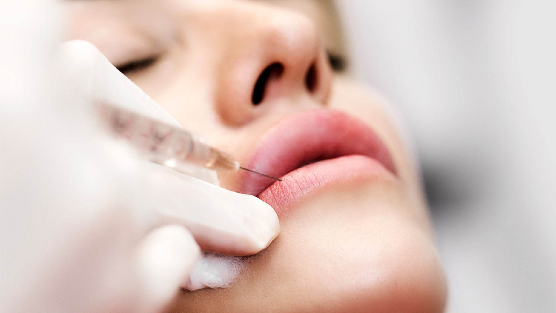 Lip fillers: Everything you need to know from a top doctor | Fox News