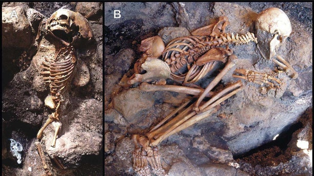 "Skeletons showing ""life-like"" stance: a child (A) (Ind. 41) and young adult male (B) (Ind. 22) unearthed from the ash surge deposit (chamber 10) (S1 Table). The child's corpse displays flexure only of the upper limbs, indicative of an incipient ""pugilistic attitude"". Full exhibit of this heat-induced stance is never found in the victims' corpses discovered at Herculaneum. (Credit: PLoS One)"