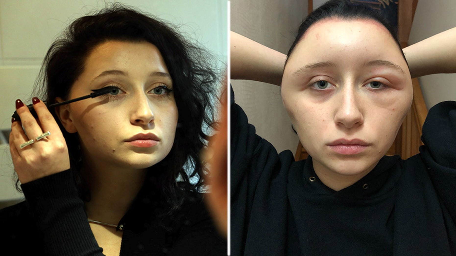 A French woman said that her head had become swollen after an allergic reaction to the hair dye.