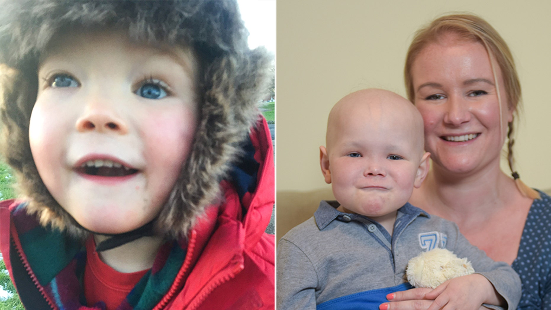 The cancer had caused the bone structure around Harri's eye to shift, and required several types of therapy to treat.