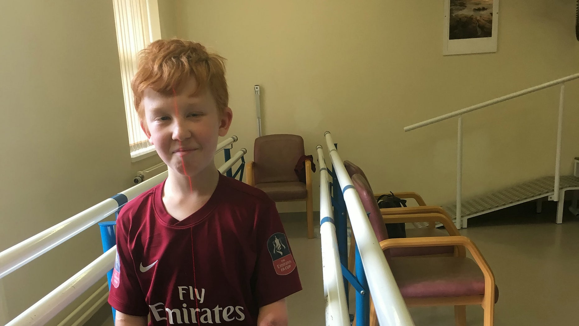 Marshall Janson, 10, is learning to walk again with brand new prosthetic limbs that allow him to bend his legs for the first time.