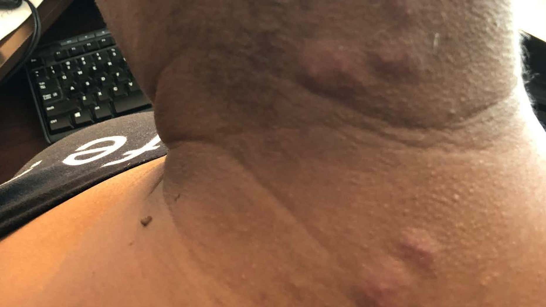 The guest claims she suffered physical and emotional damage after waking up at Disneyland Hotel covered in bedbug bites<br>