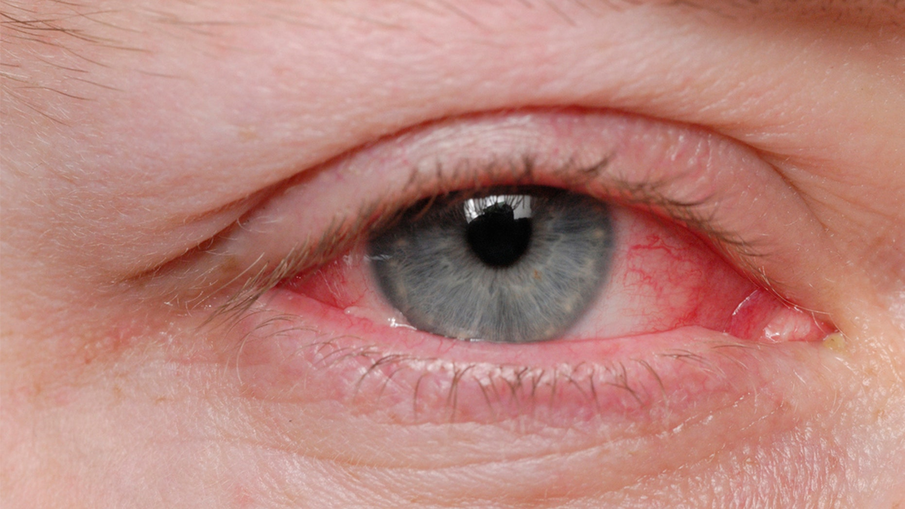 A man in Italy was diagnosed with a rare condition that causedhim to bleed from his eyes.