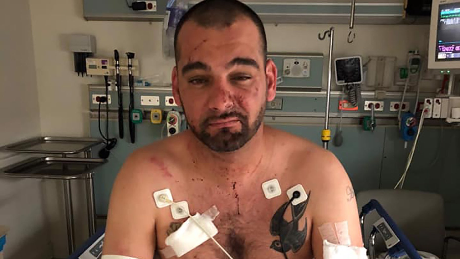 Josh Davis, a 36-year-old Red Sox fan, was brutally assaulted by whom he believes were a group of Dodgers fans after Boston won the World Series Sunday night in Los Angeles.