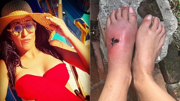 Kelly Kohen, 33, was in shallow water when she felt a pinch on her foot. Days later the wound continued to swell despite receiving antibiotics, and she was diagnosed with flesh-eating bacteria.