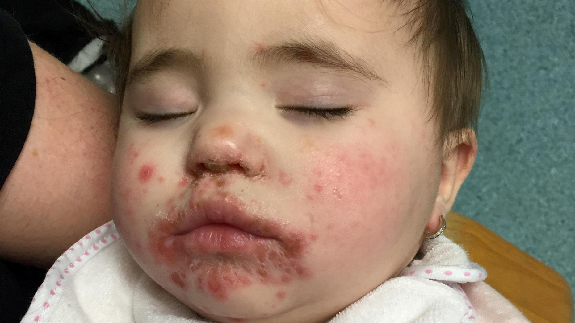 Pictures show 10-month-old Dolcie-Rae suffering from hand, foot and mouth disease at Basildon Hospital.
