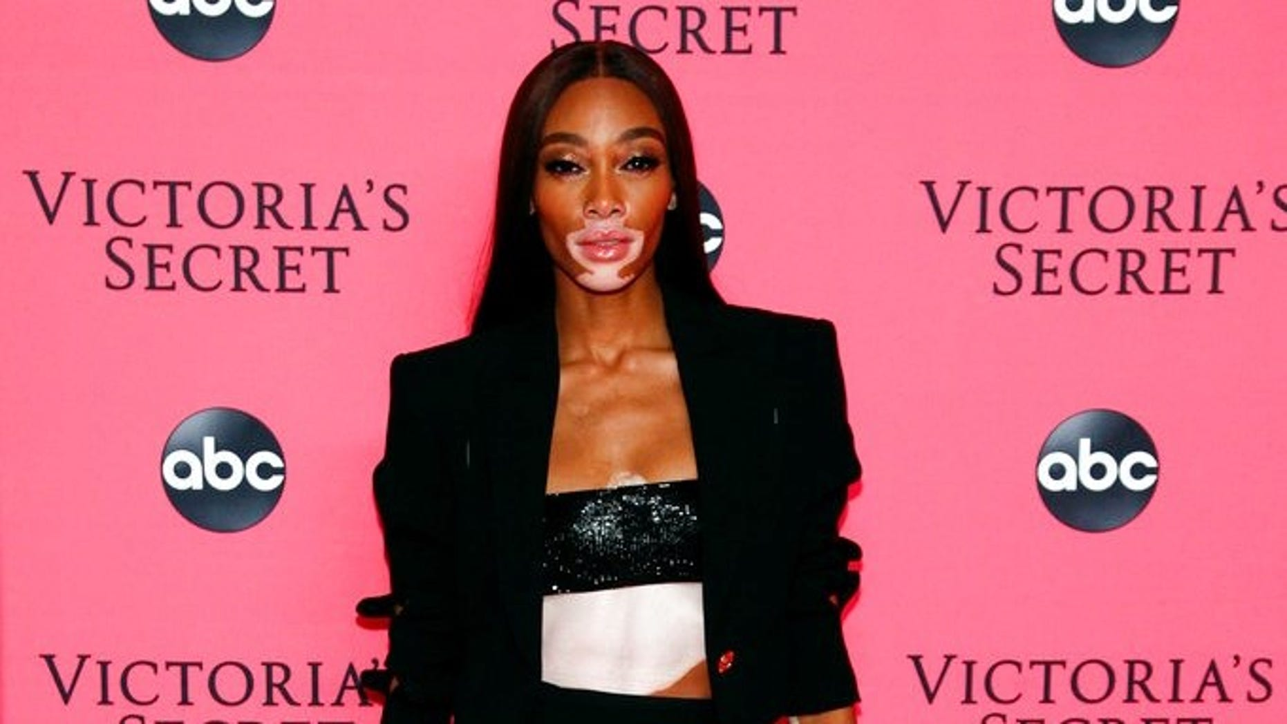 Communication on this topic: Mandy Bruno, winnie-harlow-can/