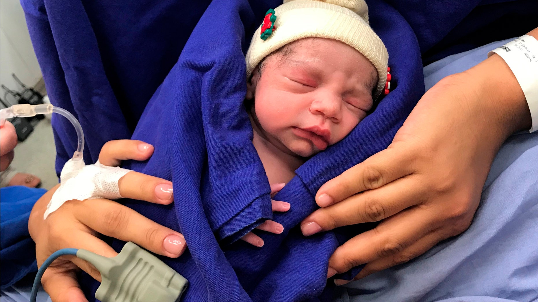 This Dec. 15, 2017 photo provided by transplant surgeon Dr. Wellington Andraus shows the baby girl born to a woman with a uterus transplanted from a deceased donor at the Hospital das Clinicas of the University of Sao Paulo School of Medicine, Sao Paulo, Brazil, on the day of her birth.