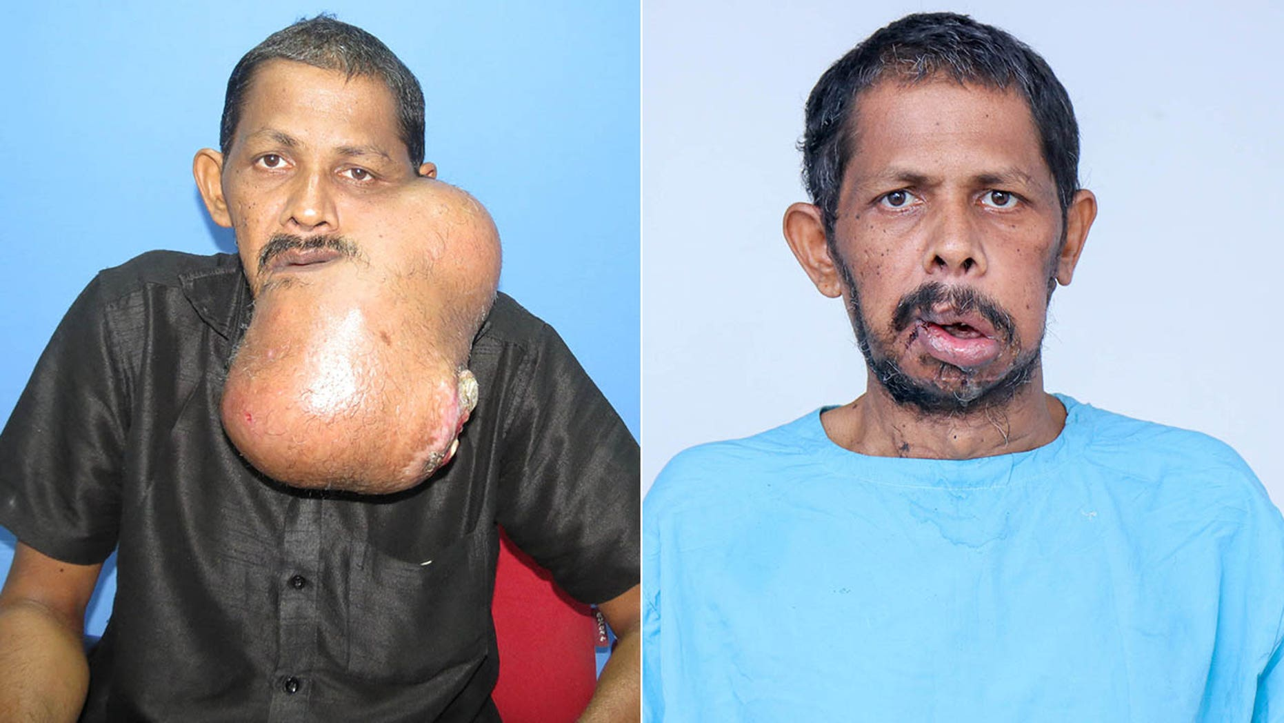 Majeed N, 45, from India, underwent a painstaking 12-hour facelift surgery to have the cancerous lump cut out.