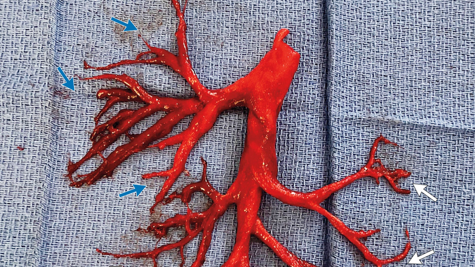 Patient coughs up blood clot shaped like lung