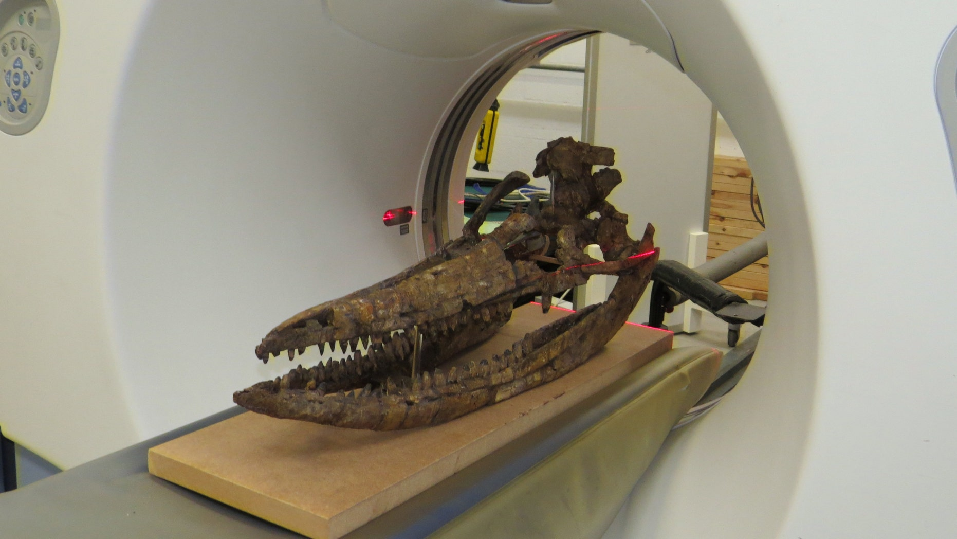 CT scanning of the skull