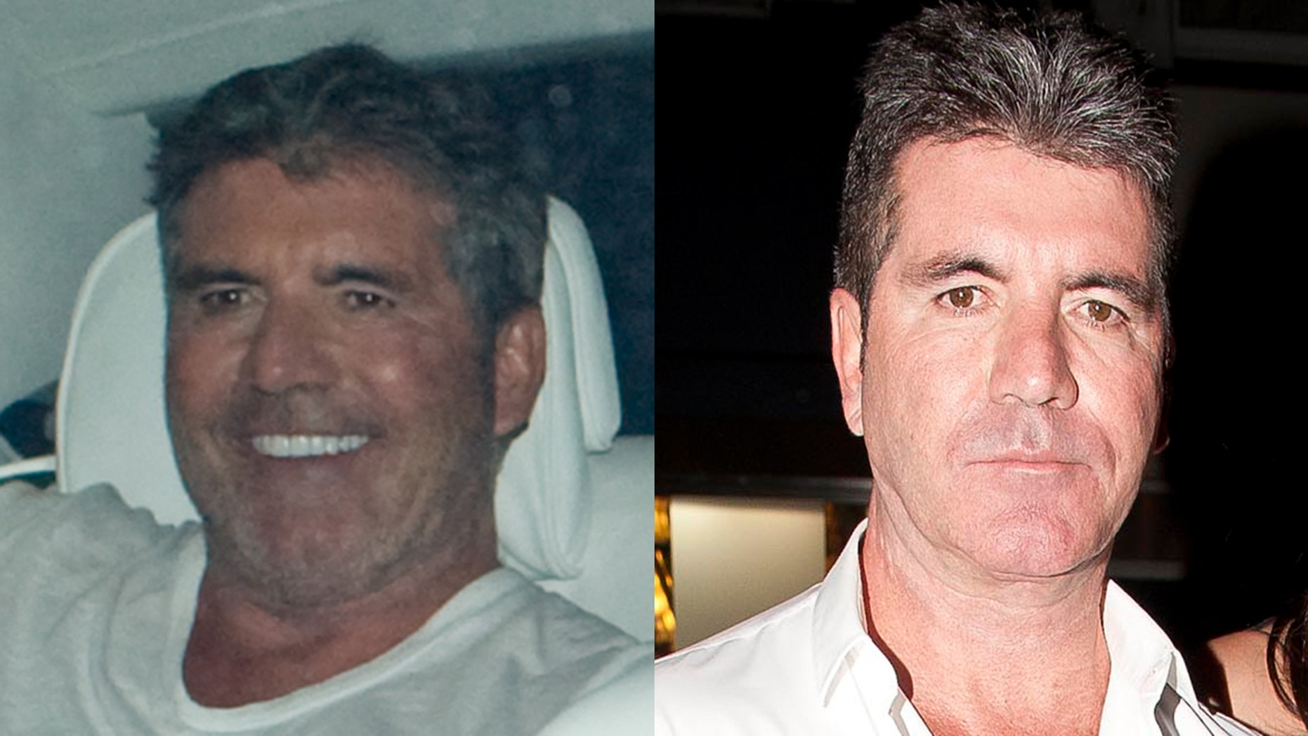 Simon Cowell Shocks Fans With Wide Eyed Taut New Look Fox News