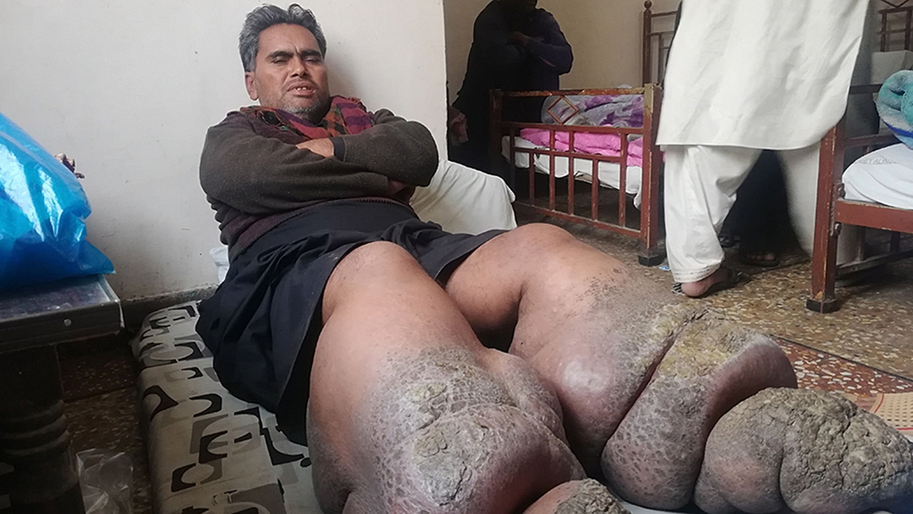 A Pakistani man is turning into stone after a rare condition has caused his legs to swell up more than twice the normal size.