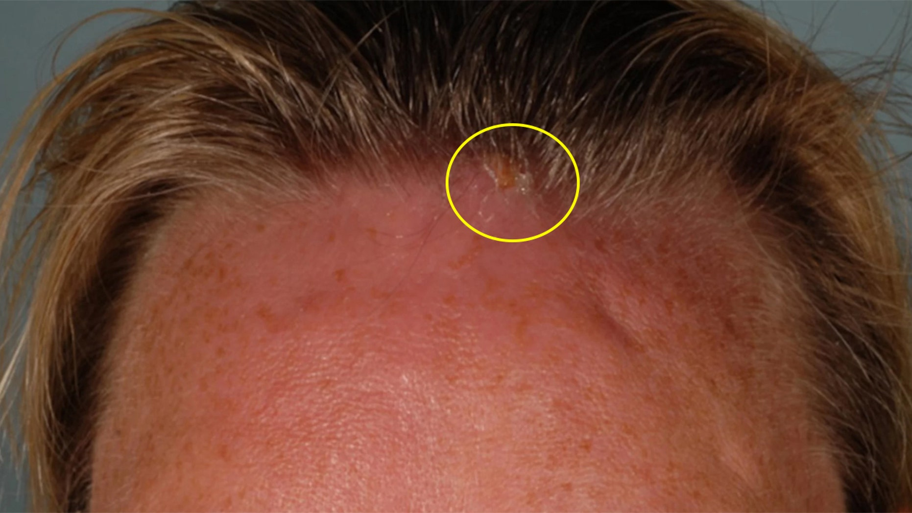 The woman was initially treated for an infected bug bite, but when she returned three days later, doctors discovered an opening near her hairline.
