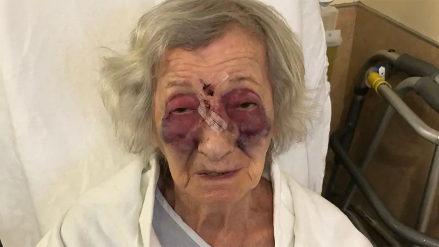 Hanka Fogelman, a 92-year-old Holocaust survivor living in Canada, says she was attacked in November while riding in a cab provided by a public transportation service.