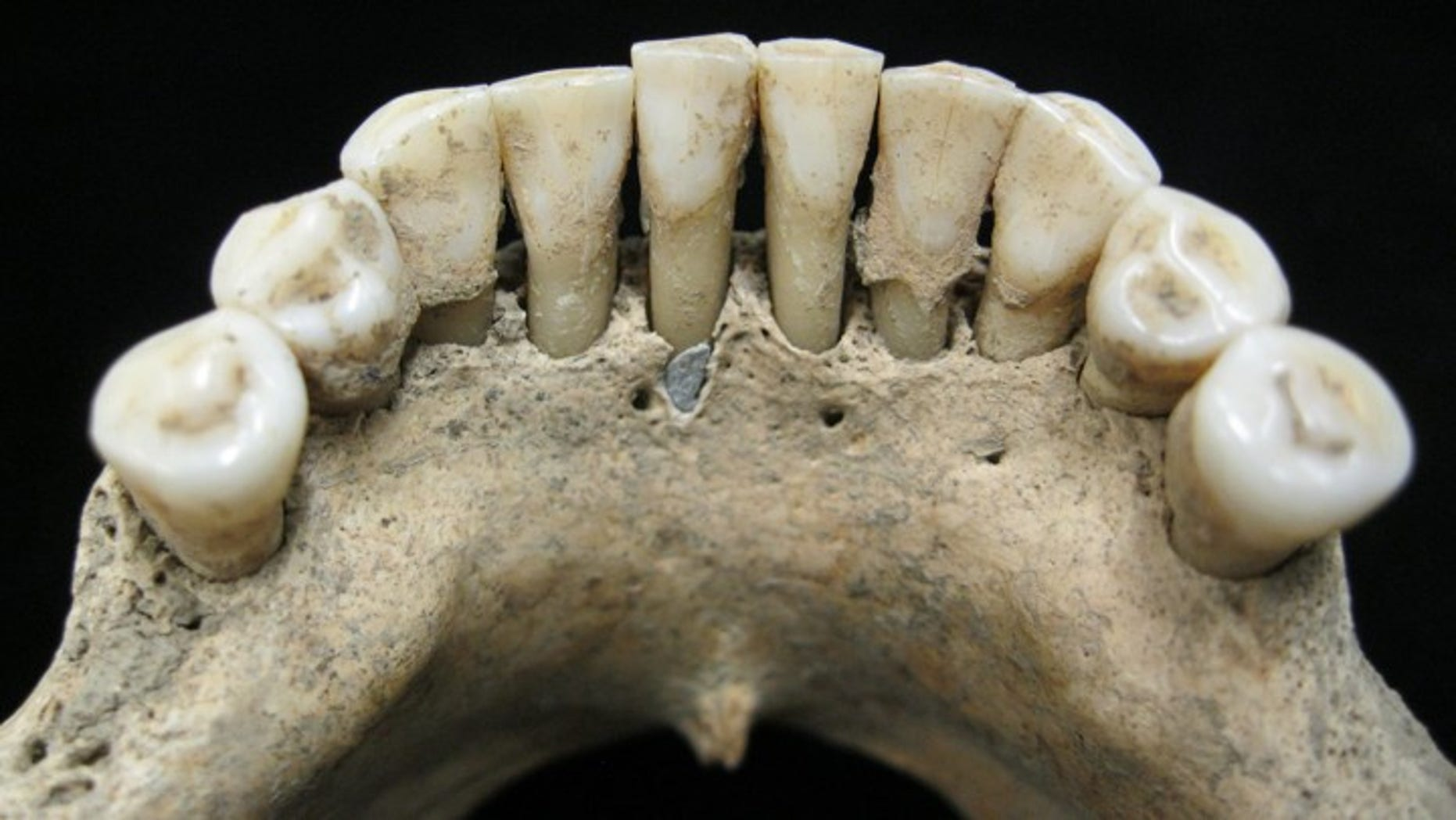Flecks of blue found in a 1,000-year-old woman's teeth have given scientists a surprising look into the medieval woman's past life.