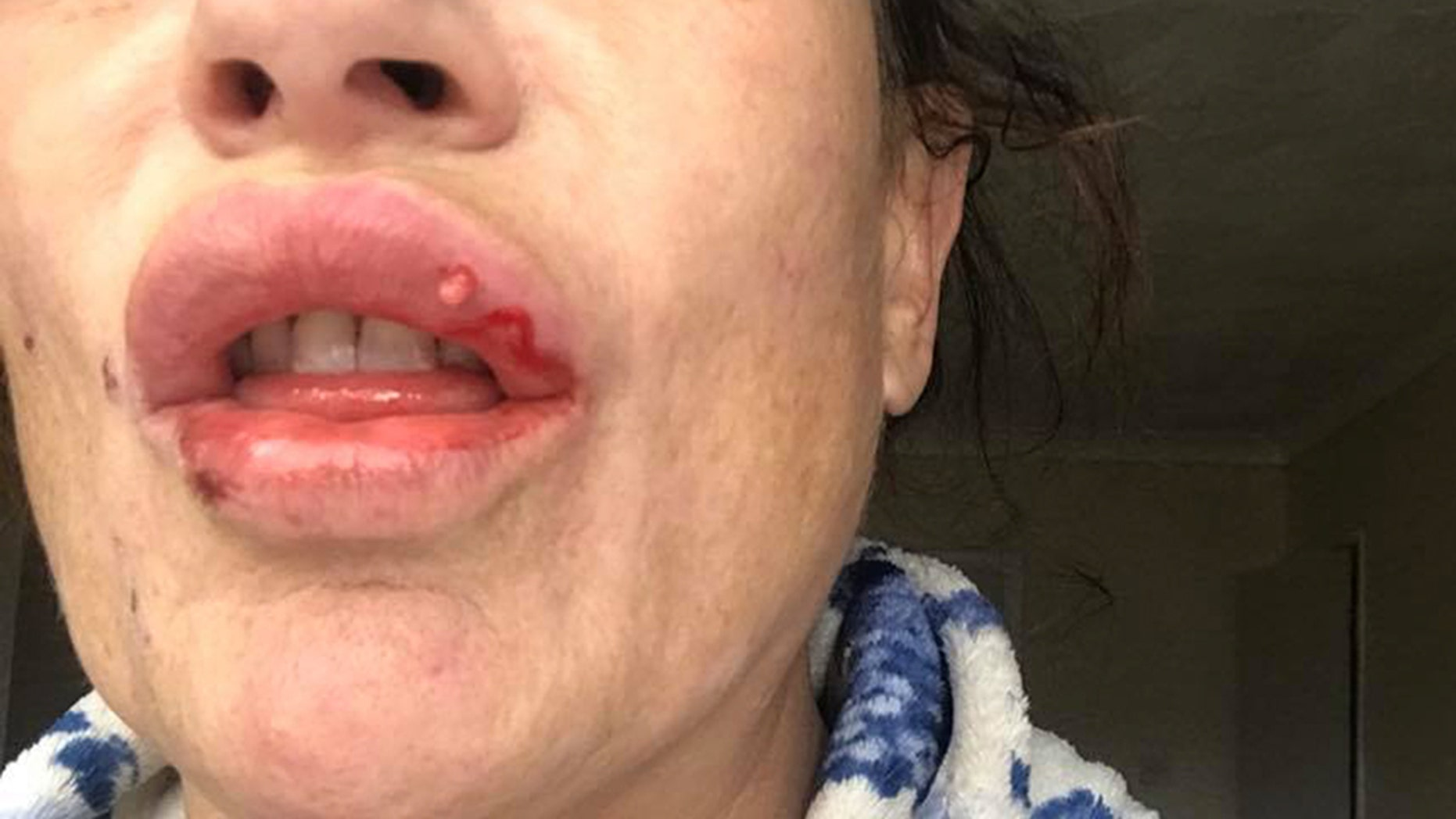 Tracy Bates said she noticed her lips were more swollen than usual, and shortly after recognized an infection and tried to squeeze the filler out.