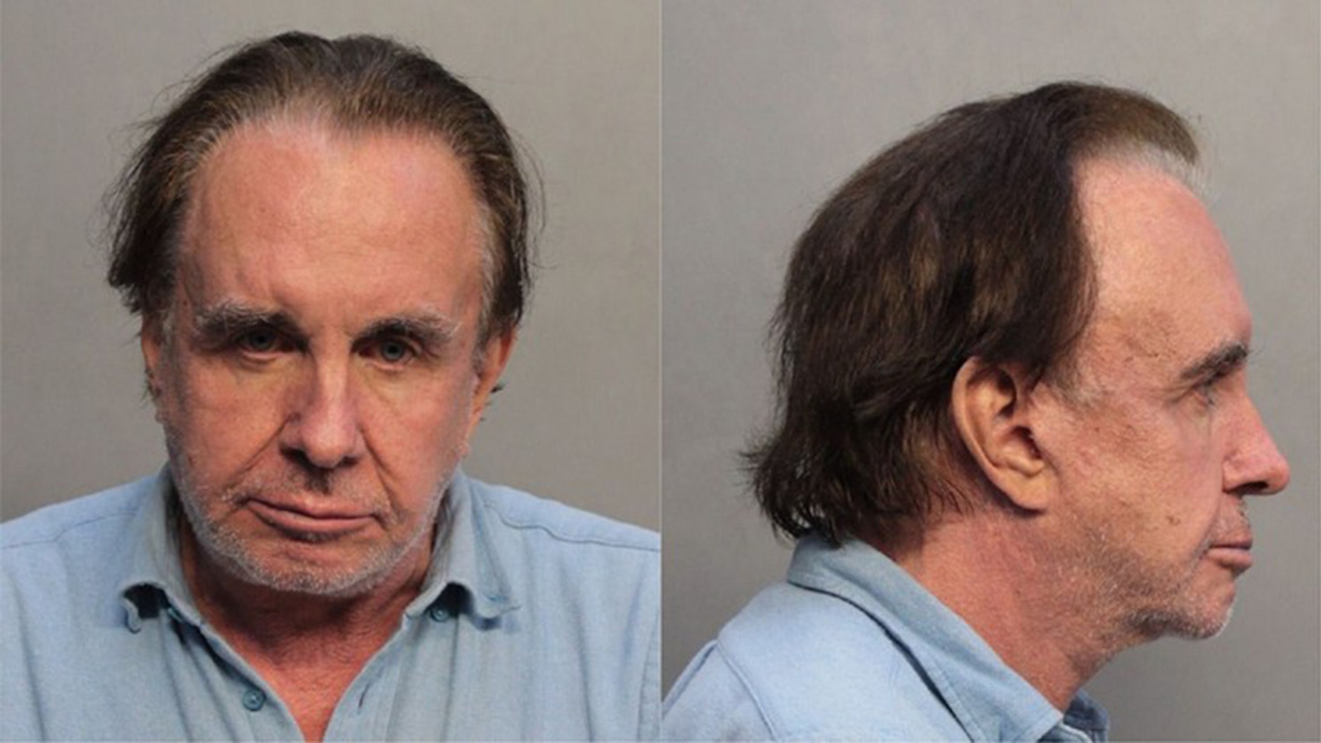 Walter Stolper, 73, is accused of targeting Jews when attempting to torch a Miami apartment building.