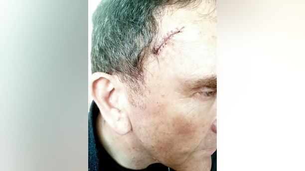 Adam Shatford had multiple cancerous growths removed from his face and forehead after his hairdresser encouraged him to get them checked by a doctor.