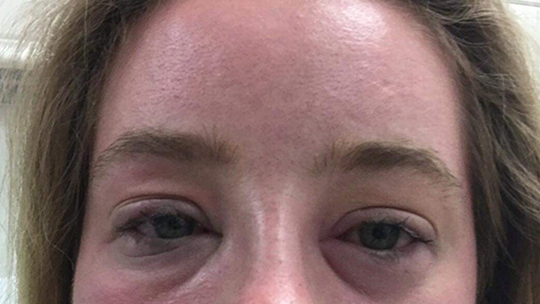 Lydia O'Connor, 23, from Chelmsford, Essex, was diagnosed with chronic idiopathic urticaria and is terrified that the symptoms will return without any warning, at any moment.