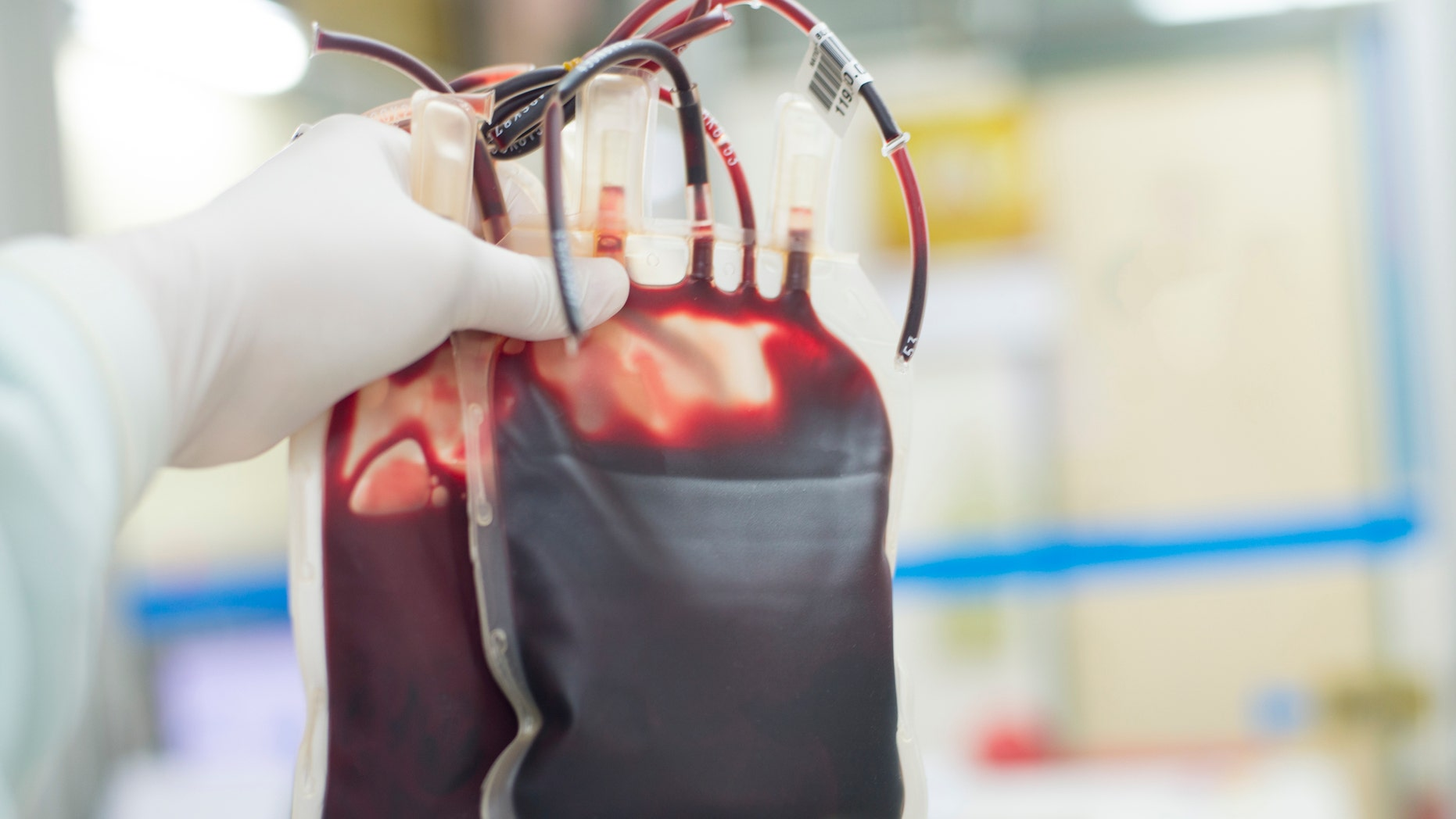 Beware of buying young people's blood to prevent aging, FDA says