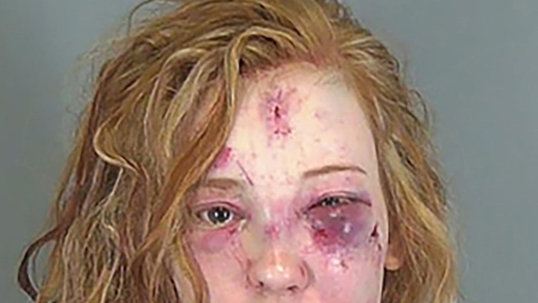 Savanna Grace White, 22, was arrested in an alleged stun-gun attack, police said.