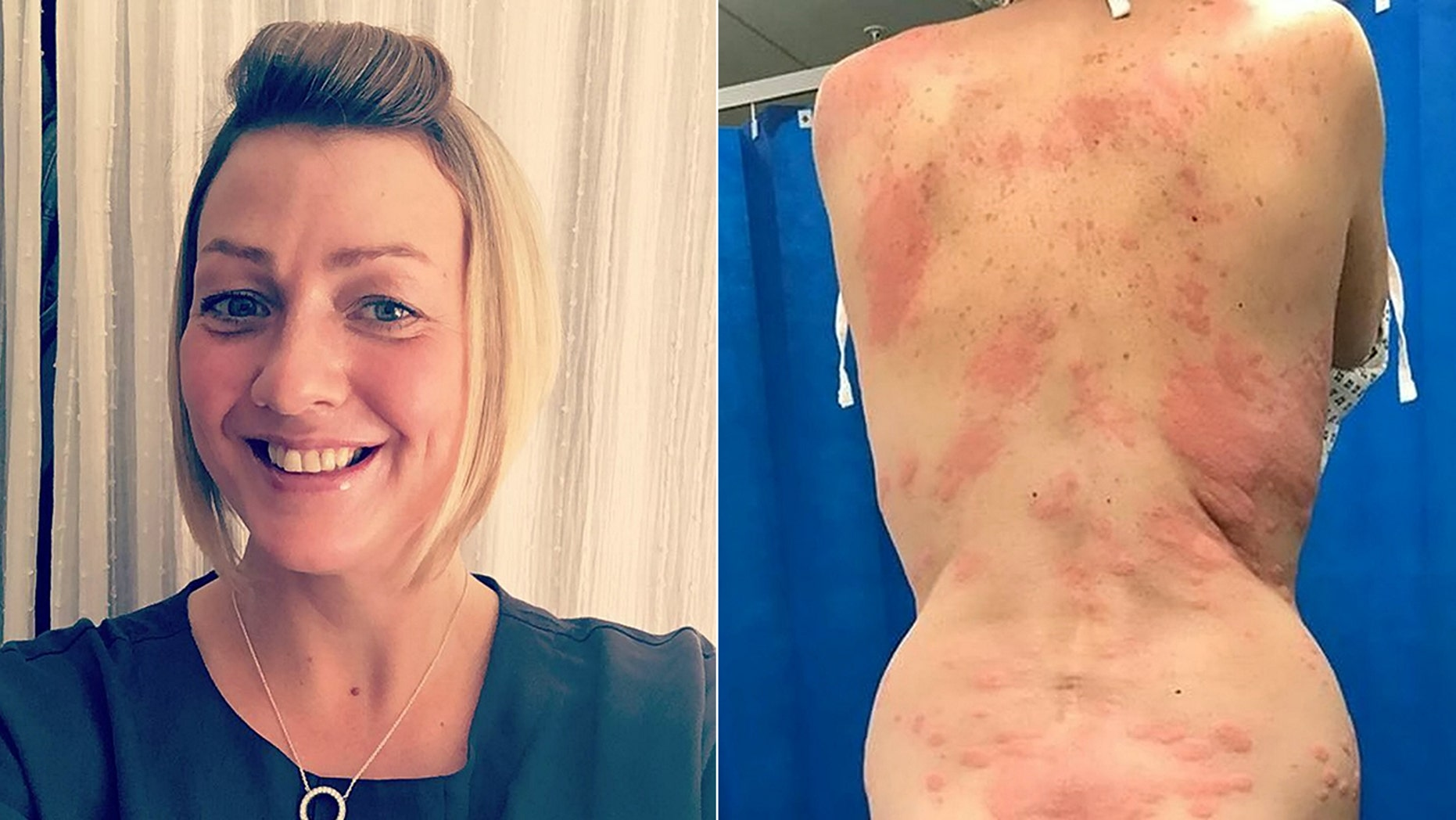 Lisa Santiago-Griggs, 42, said she developed the painful rash after using a vape for the first time.