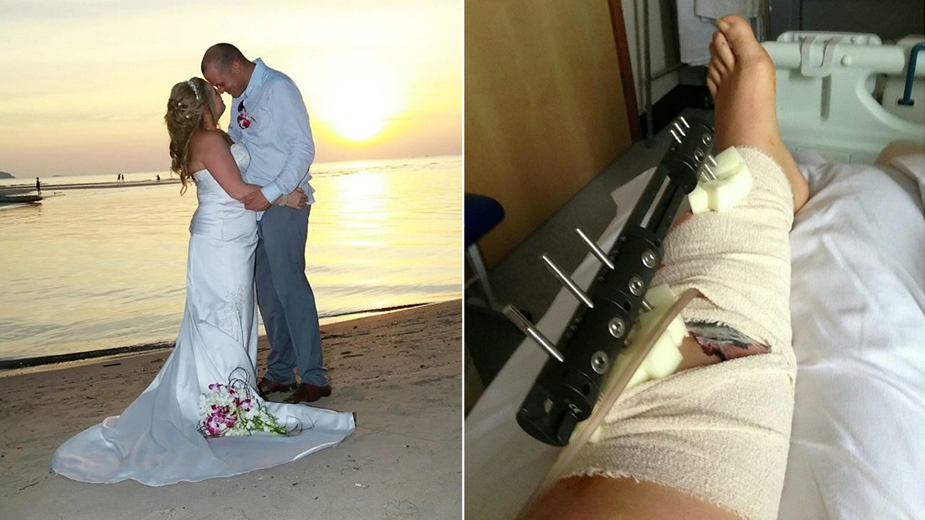 Natalie Fitzpatrick, who had wed husband Paul in a 2012 beach ceremony in Koh Chang, Thailand, said the pair were watching a fireworks display with her 4-year-old daughter when one shot went off into the crowd.