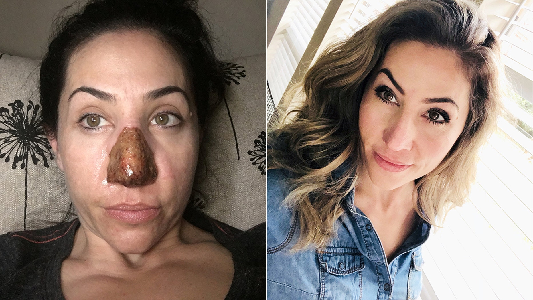Adrianna Ely had the skin on her nose burned off as part of her treatment plan for a rare condition that caused her nose to morph and double in size.