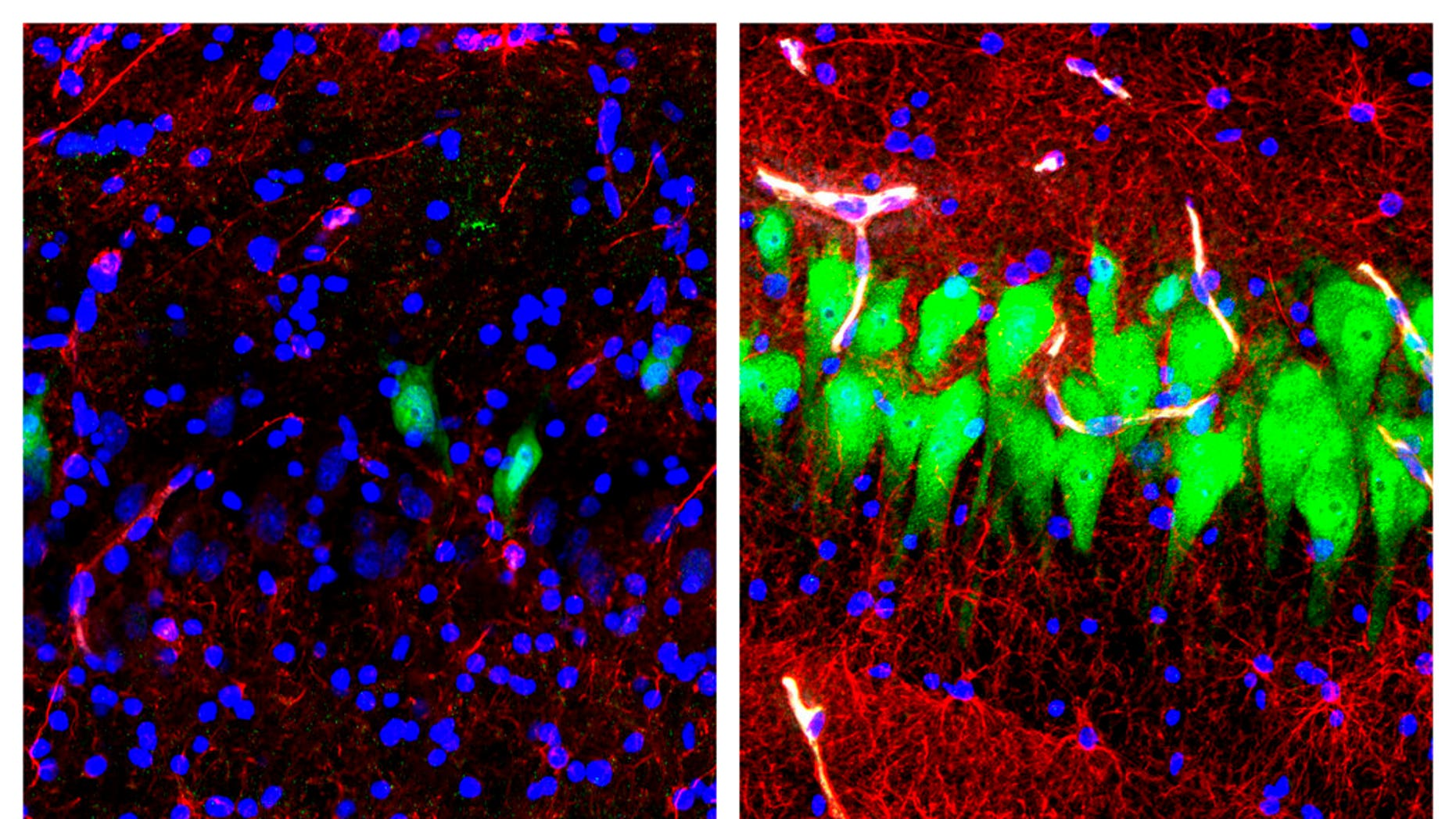 This combination of images provided by the Yale School of Medicine in April 2019 shows stained microscope photos of neurons, green; astrocytes, red, and cell nuclei, blue, from a pig brain left untreated for 10 hours after death, left, and another with a specially designed blood substitute pumped through it.