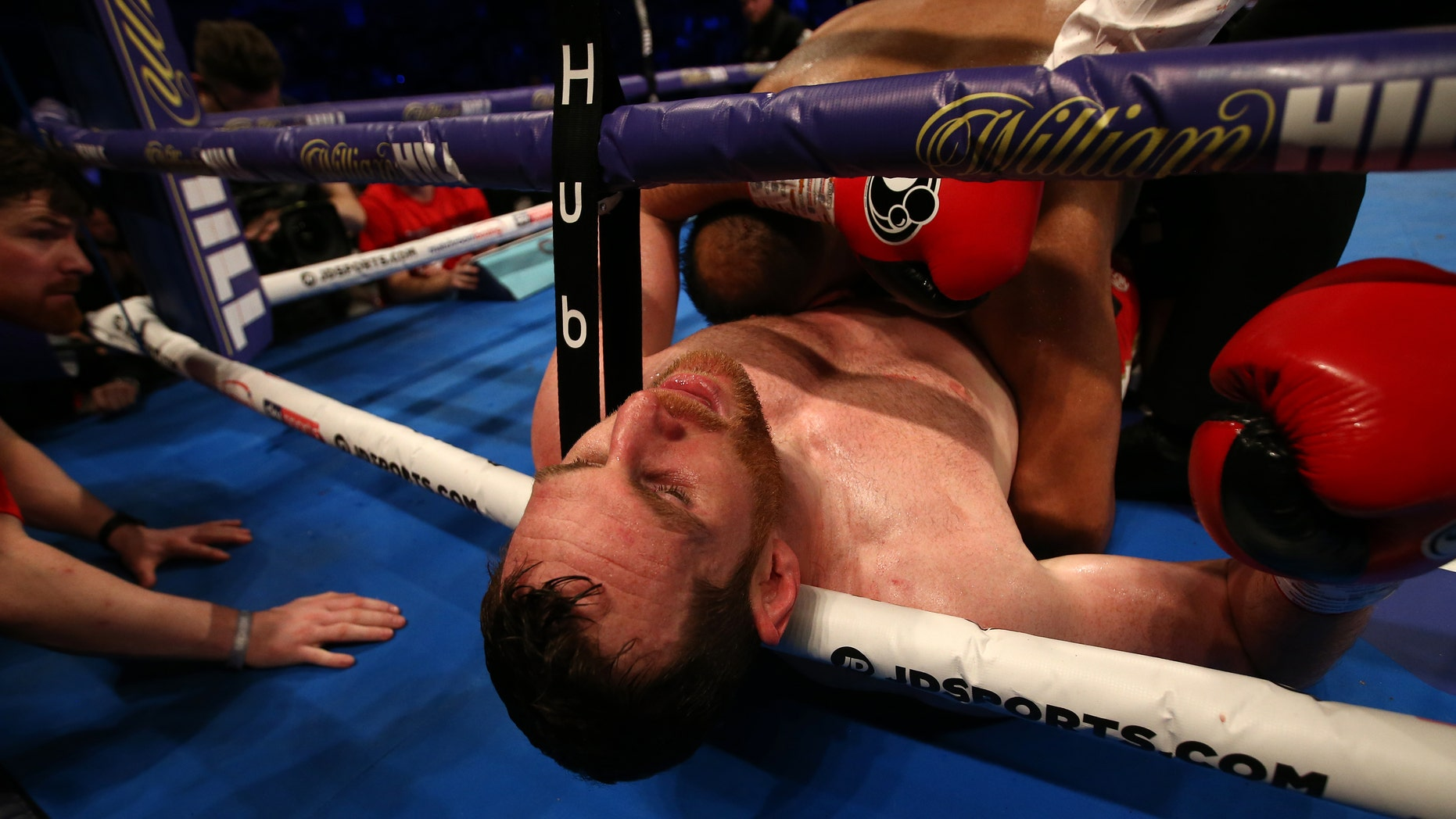 David Price reacts after being bitten by in Kash Ali during their heavyweight bout at M&S Bank Arena on March 30, 2019 in Liverpool, England.