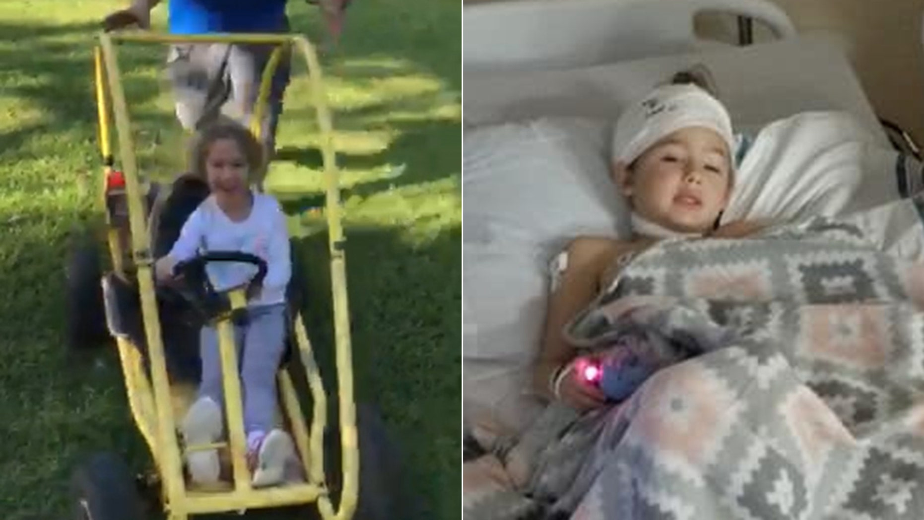 Lani Use, pictured left moments before her horrific accident, and right after her emergency surgery, had been riding in the go-kart at a family party when her hair got stuck in the vehicle's motor.